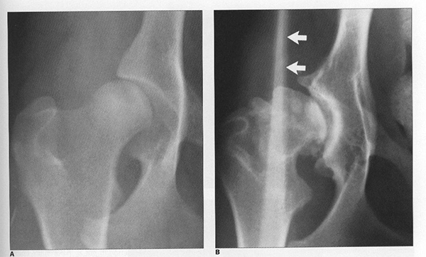 Остеоартроз у собак (клинико-рентгено-морфологические корреляции)